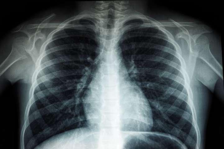 Американка сделала рентген и узнала, что сильно отличается от других людей